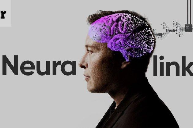Фірма Маска імплантувала в мозок мавпи чіп. Тепер тварина може силою думки грати у відеоігри