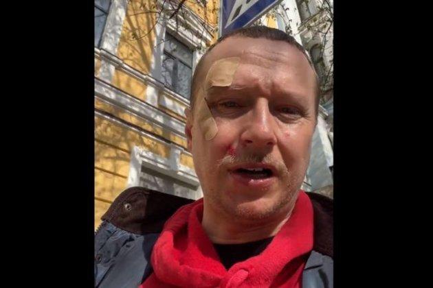 «Пропускай пішоходів!». Журналіста Майкла Щура побили в центрі Києва (відео)