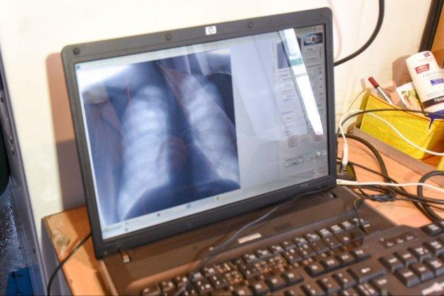 Китайці навчили штучний інтелект виявляти COVID-19 за знімками КТ