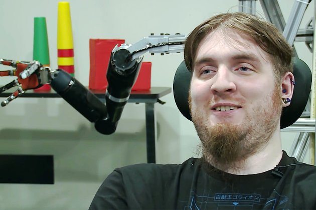 Паралізований американець кинув виклик мавпі зі стартапу Neuralink