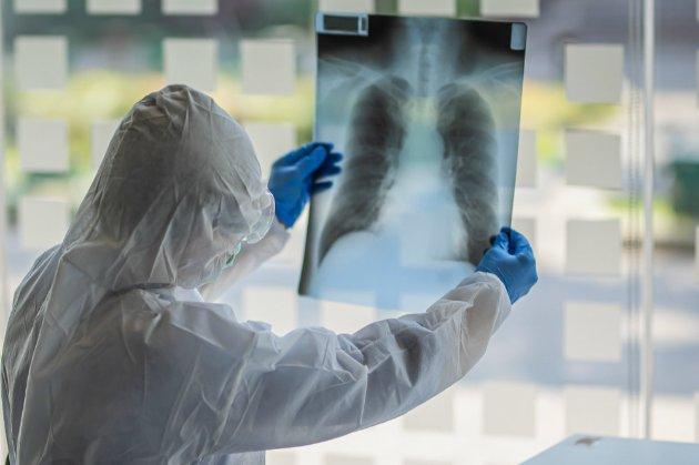 «Дельта плюс». В Індії медики виявили нову мутацію місцевого штаму COVID-19