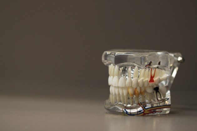 У США жінка пограбувала стоматолога та вирвала його пацієнту 13 зубів