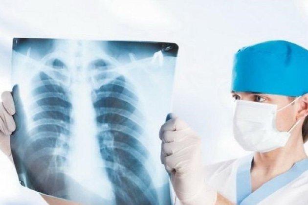 МОЗ вимагає збільшення бюджету на лікування туберкульозу у 2021 році