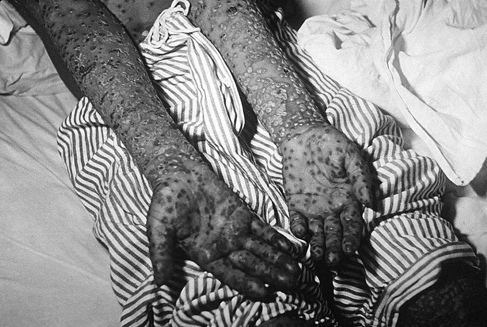 Чоловік, хворий на віспу. Косово, 1972 рік / Getty Images
